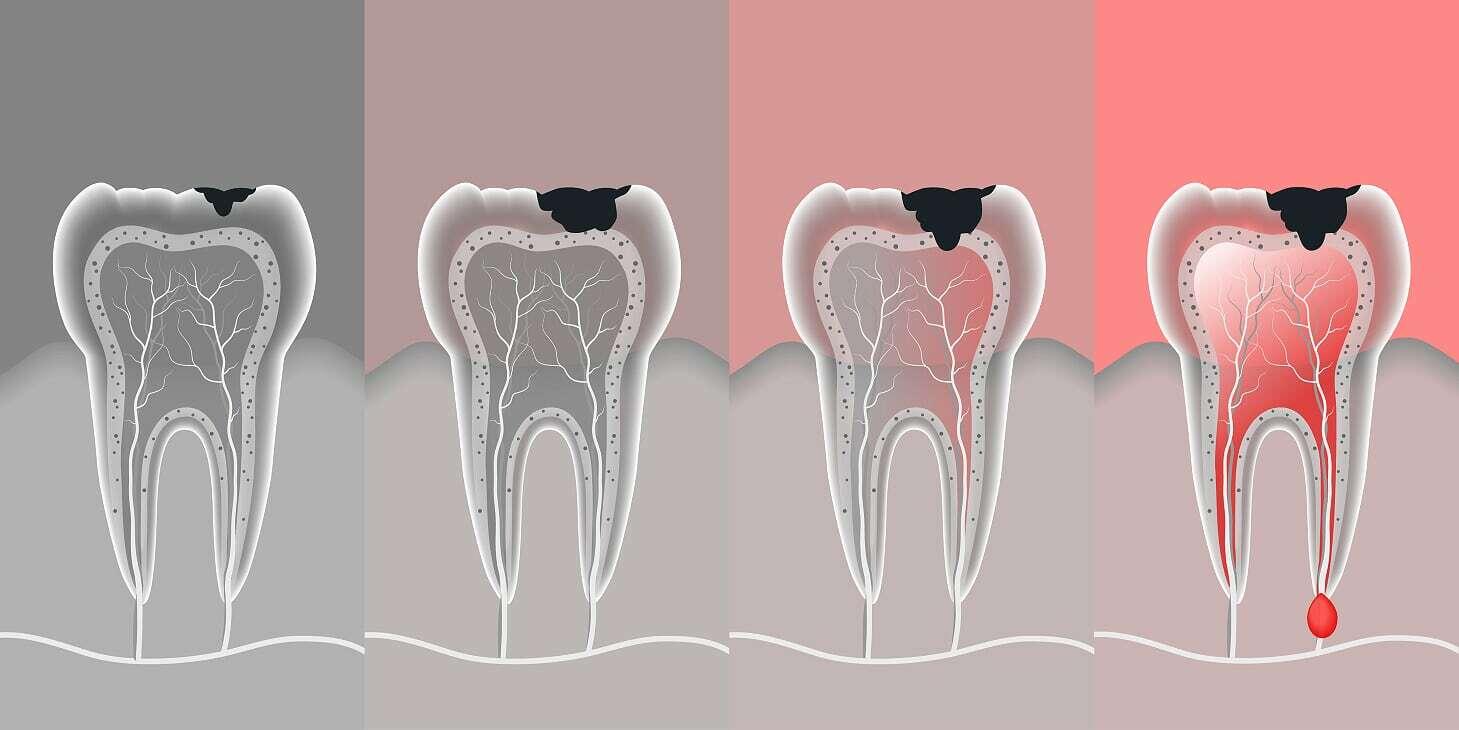 Clinique Dentaire Rivière des Prairies - dentiste -carie