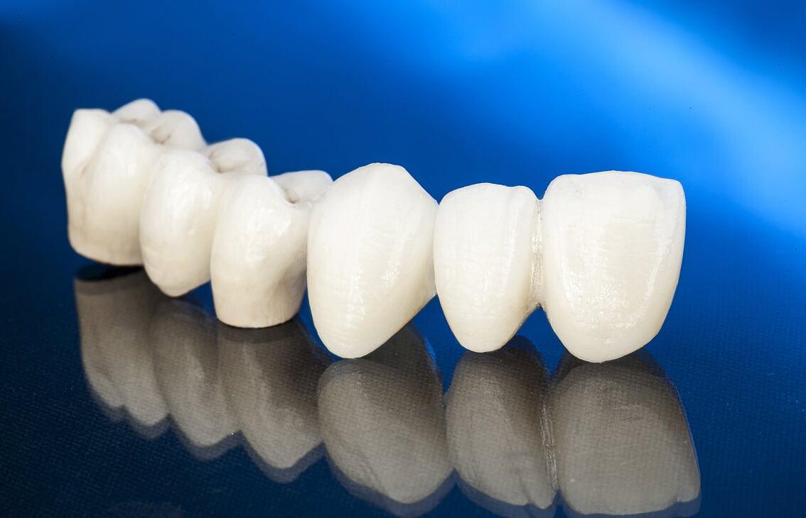 Clinique Dentaire Rivière des Prairies - dentiste - couronne et ponts