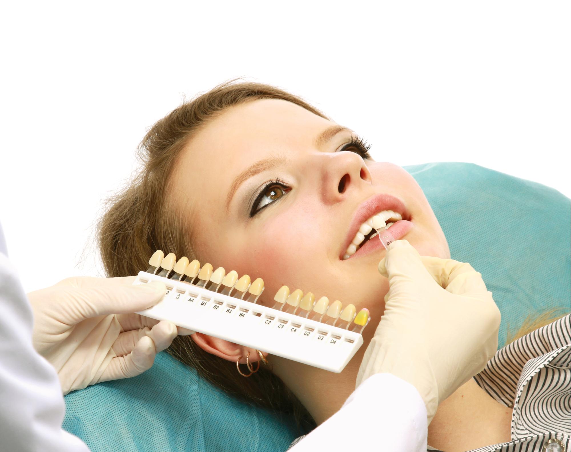 Clinique Dentaire Rivière des Prairies - dentiste - facette en céramique