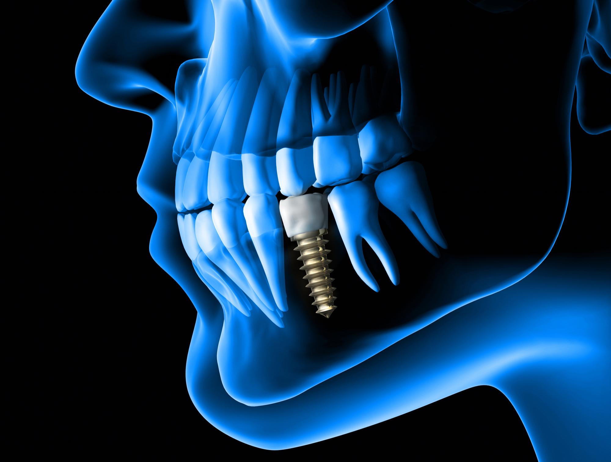Clinique Dentaire Rivière des Prairies - Implantologie